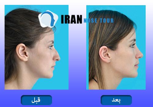 جراحة أنف العظمي قبل و بعد صور