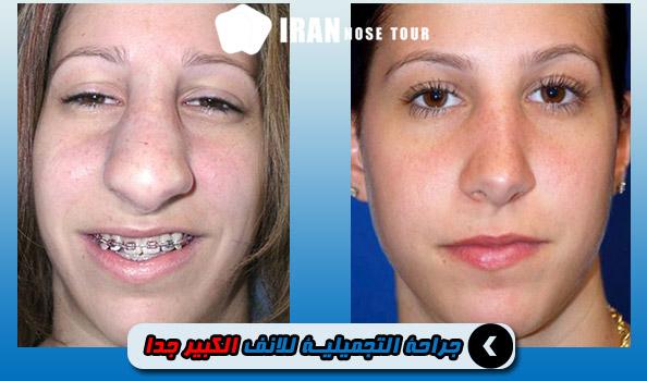 جراحة التجميلية للانف الكبير جدا لجراحة الأنف الواسع اللحمي Irannosetour