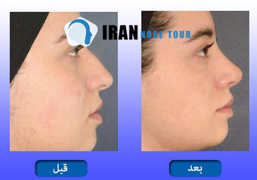 قبل وبعد جراحة الأنف العظمية