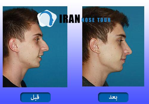 قبل و بعد عملية تجميل الانف العظمي